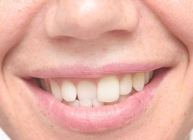 crowded teeth condition can be addressed with Invisalign