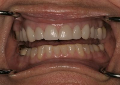 smile makeover with veneers before and after