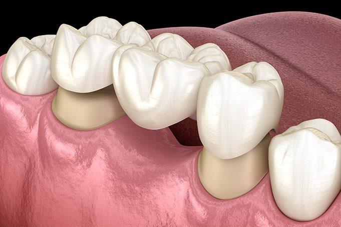 Dental Bridges -Solve Missing Teeth Problems