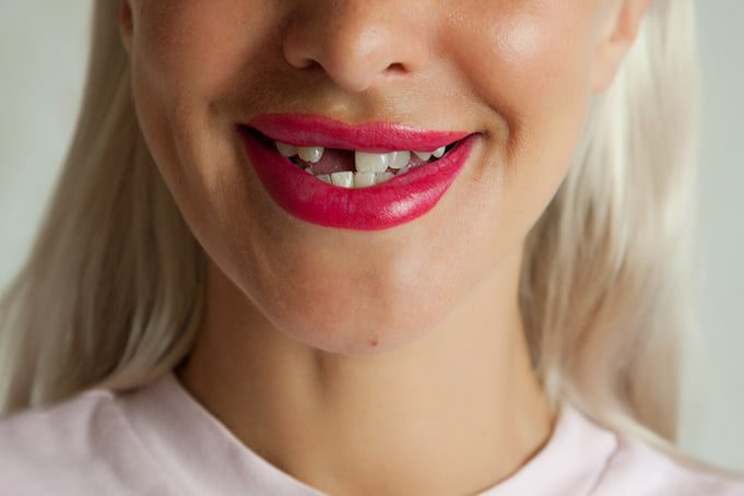 Losing a Tooth? Try Dental Bridges