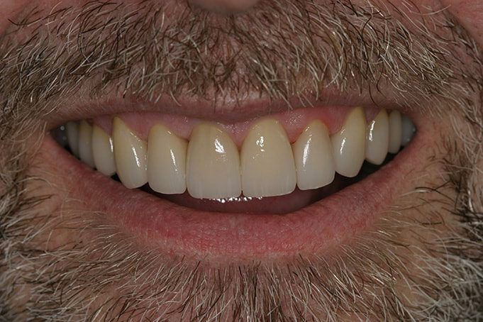 Cosmetic Dentistry and discolored teeth corrected with crowns and veneers