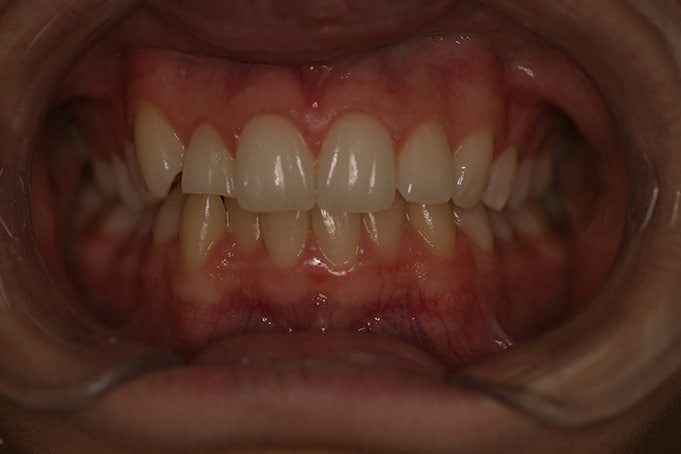 Cosmetic Dentistry and misaligned teeth