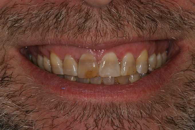 Cosmetic Dentistry and discolored teeth