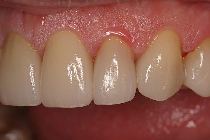 After- Dental  Crowns by Dr. Bec