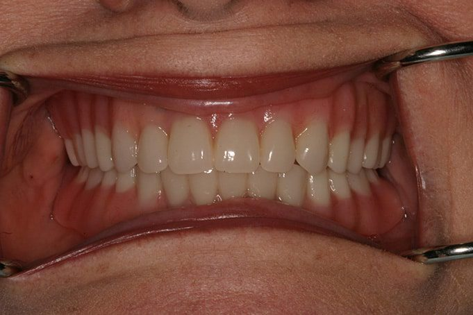 affordable dentures services in san antonio