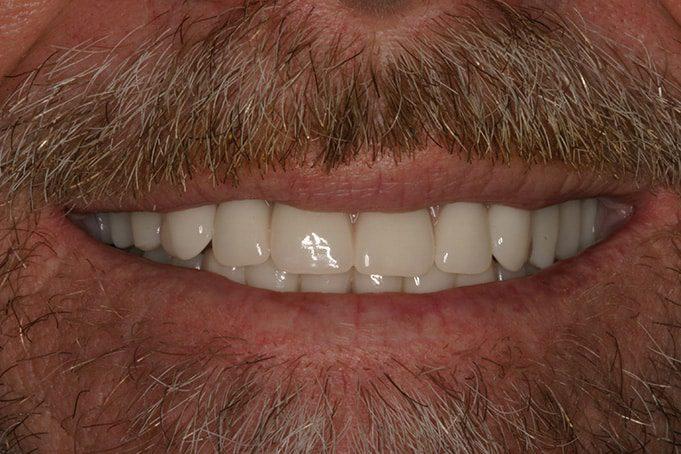 affordable Dentures Actual Patient 1
