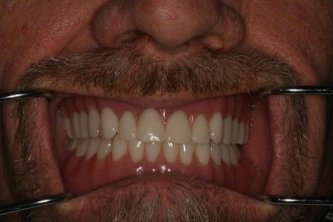 affordable Dentures Actual Patient