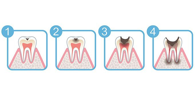 cavities leading to infection necessitating root canal treatment