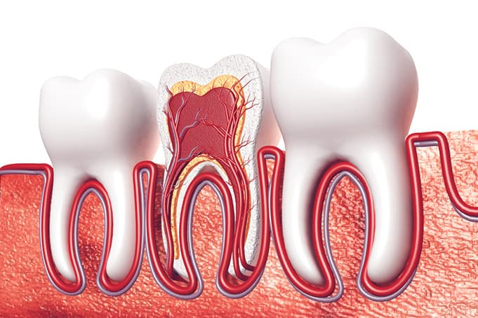 Root Canal Treatment -  system of a tooth
