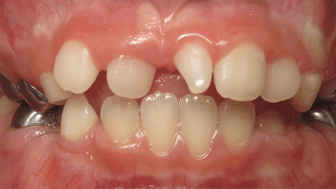 gummy smile in a young adolescent due to altered passive eruption