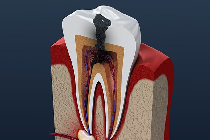 an infected tooth has teeth sensitivity symptoms