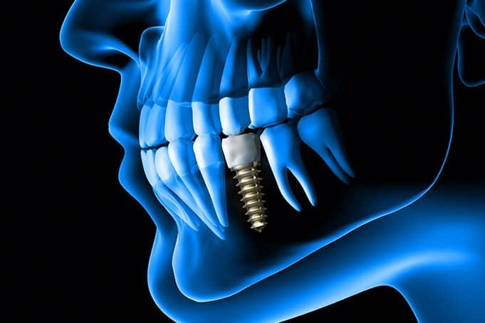 Dental Implant Dentist in San Antonio, TX