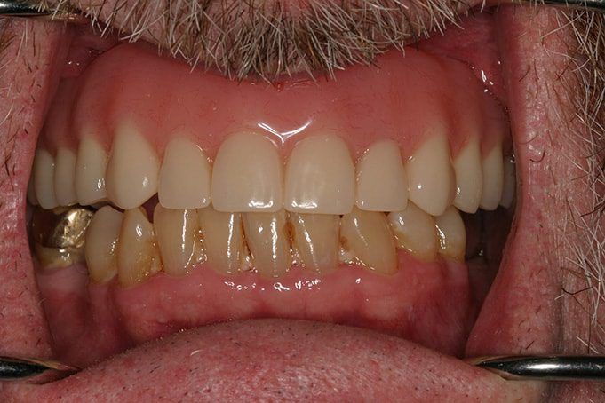 loose dentures treatment