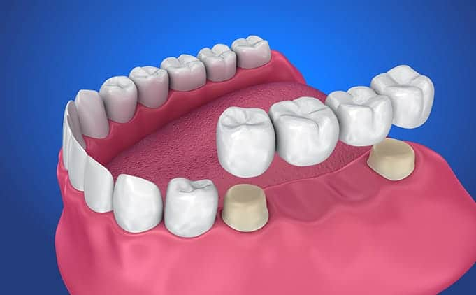 missing teeth replaced with bridge