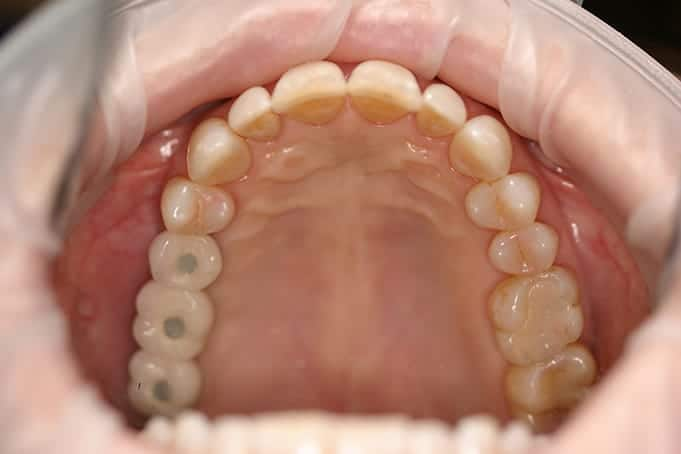 several missing back teeth replaced with implants in San antonio, tx