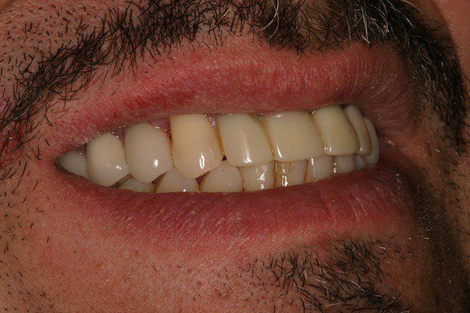 dental implants replaced missing premolar in san antonio, tx