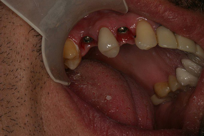 missing tooth (premolar) will be replaced with dental implant in san antonio, tx
