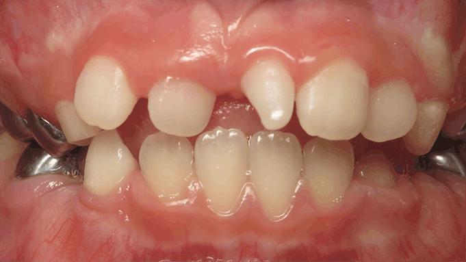 misshapen and irregular teeth