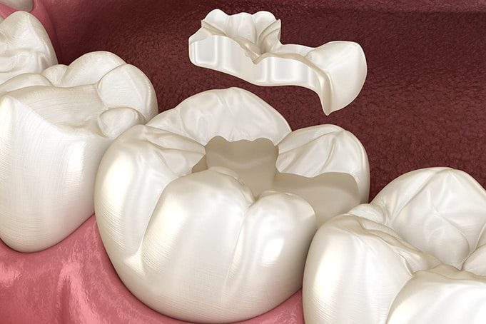 inlays and onlays are special teeth fillings.