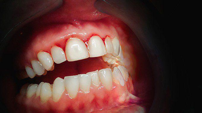 gingivitis therapy in san antonio, tx