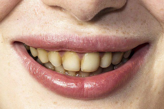 debridement teeth cleaning in san antonio, tx