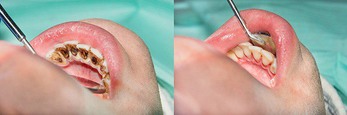 gum infection treatment in san antonio, tx