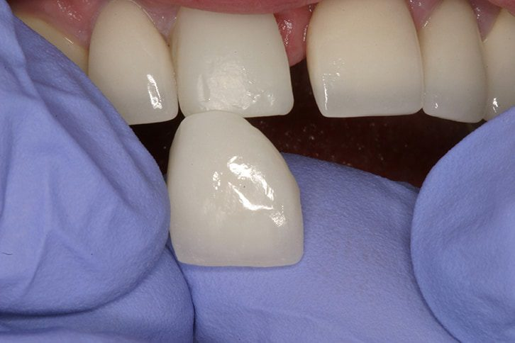 Silver Amalgam Filling Replacement