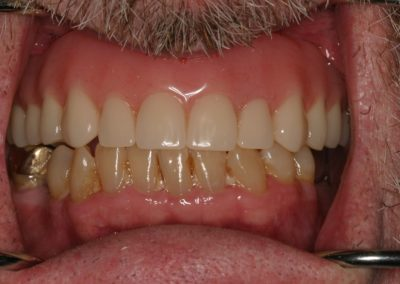 snap on dentures before and after