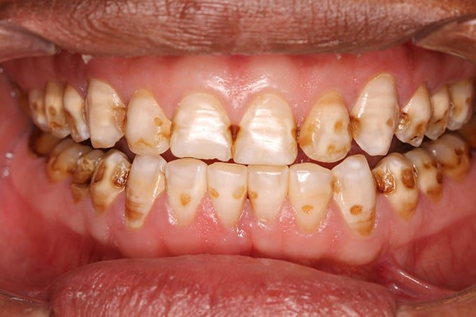 discolored teeth can be made white again