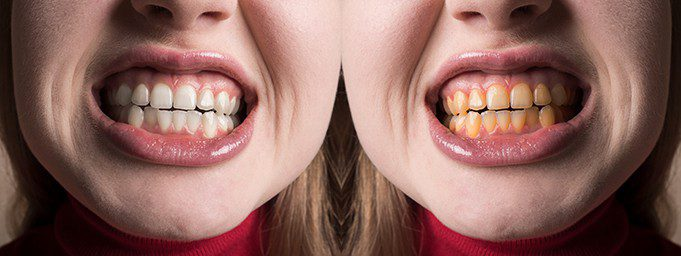 problems that cause discolored teeth