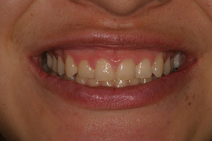 gummy smile patient in San Antonio