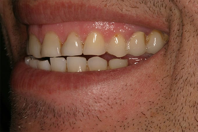 short and worn out teeth create eruption and gummy smile