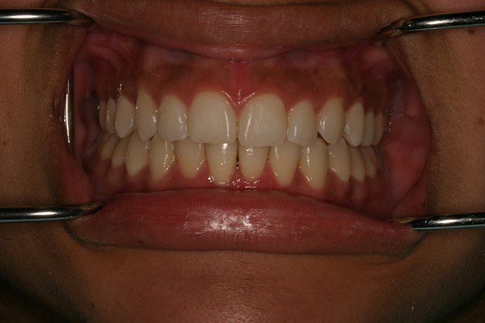 misshapen teeth - after invisalign