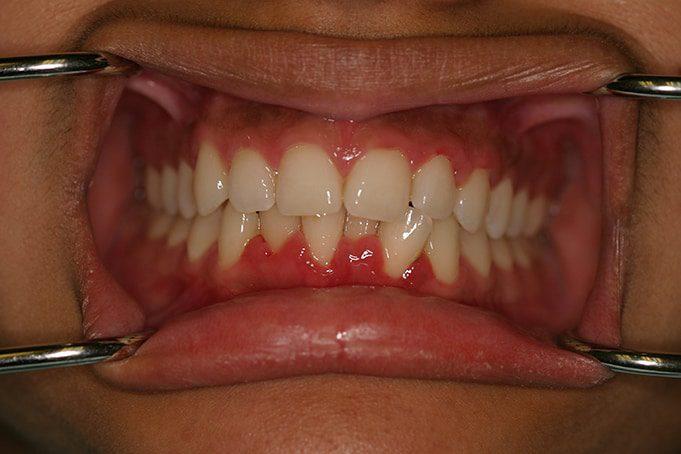 misshapen teeth - before invisalign