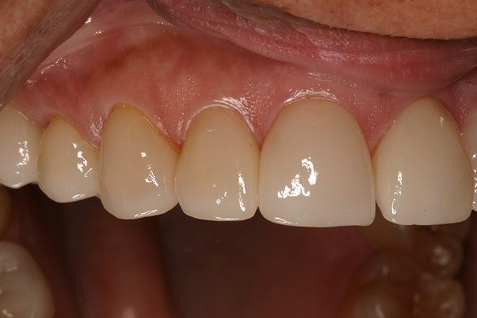 Closing the spaces with new teeth crowns eliminates food being stuck in between teeth.