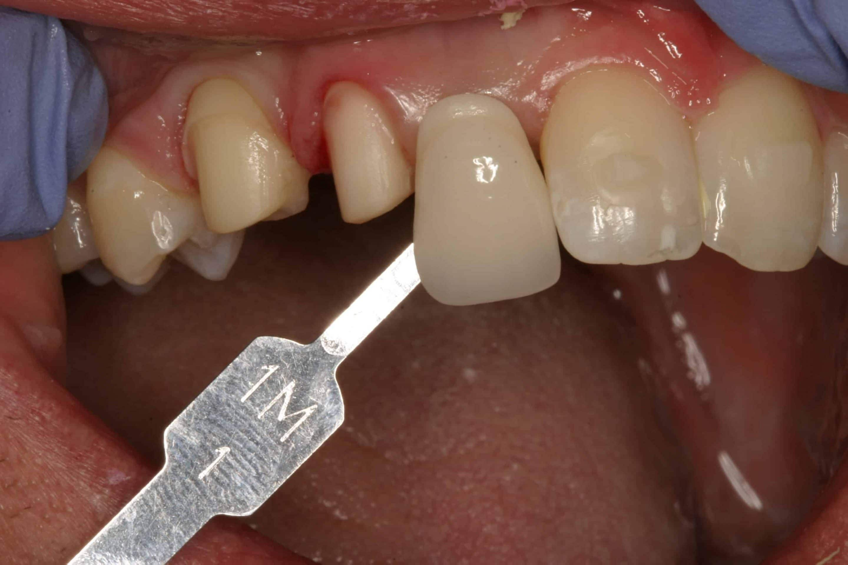 implant crown patient pictures