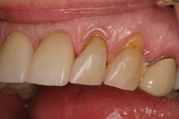 Bleeding gums - advanced gingivites