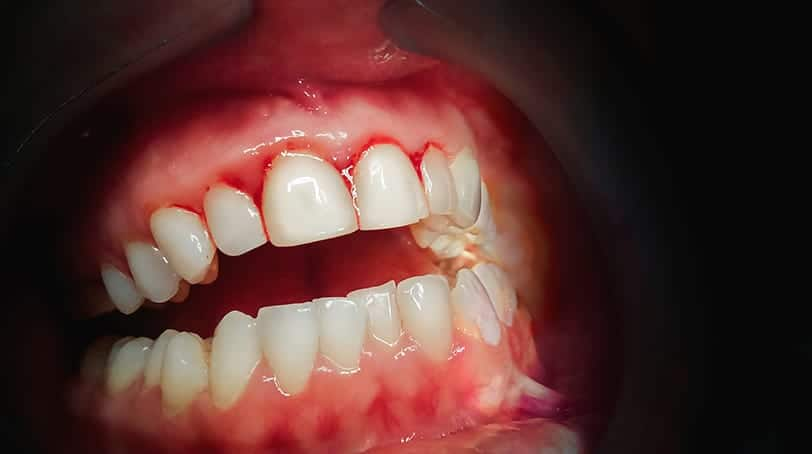 bleeding gums - gingivitis and periodontitis