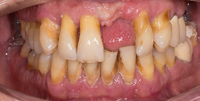 Bleeding gums disease leads to gum disease
