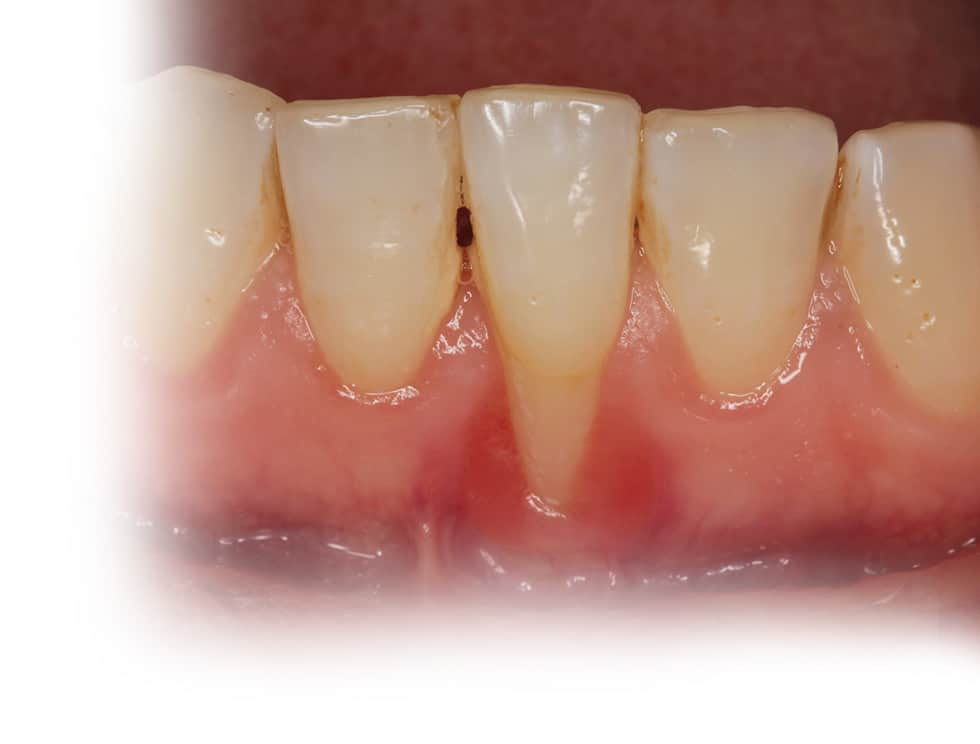 periodontal surgery services