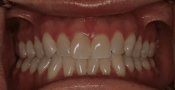 A Normal Bite: The upper teeth barely cover the bottom teeth.