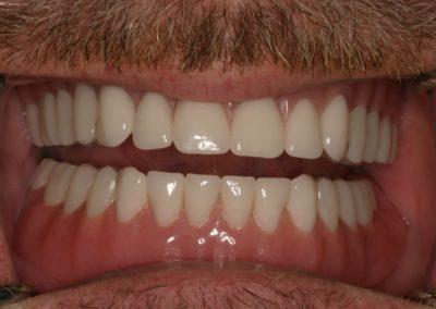 Traditional Denture