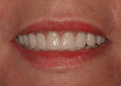 Traditional Denture