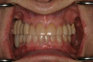 Dental Implants-Replace Missing Teeth San Antonio-actual-patient-Daniel--after