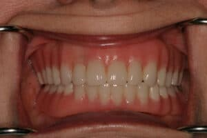 Dental Implants-Replace Missing Teeth San Antonio-actual-patient-Francis-after-2