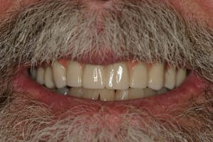 Dental Implants, all-on-6 case in San Antonio, Replace Missing Teeth San Antonio-actual-patient