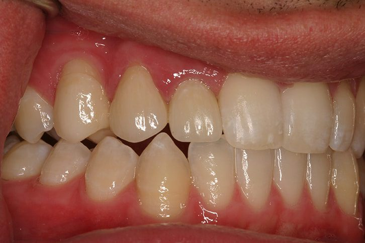 Dental Implants Replace Missing Teeth San Antonio patient-after