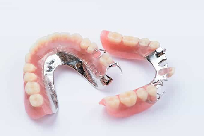 Partial Dentures - most affordable option for missing teeth