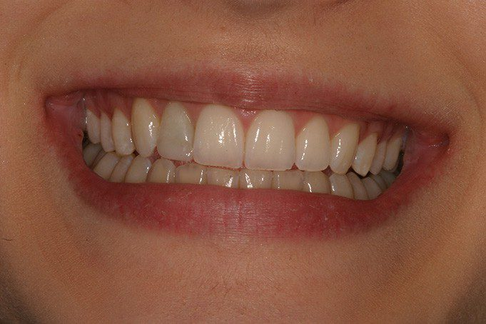 Teeth Straightening Invisalign Treatment