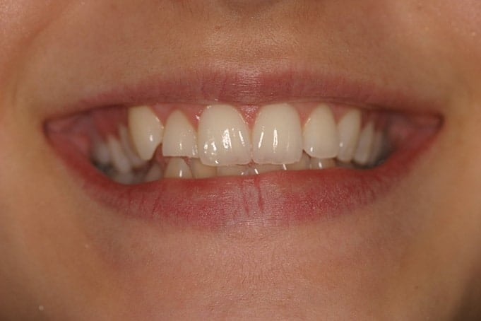 Teeth Straightening Invisalign Treatment-Abby-before